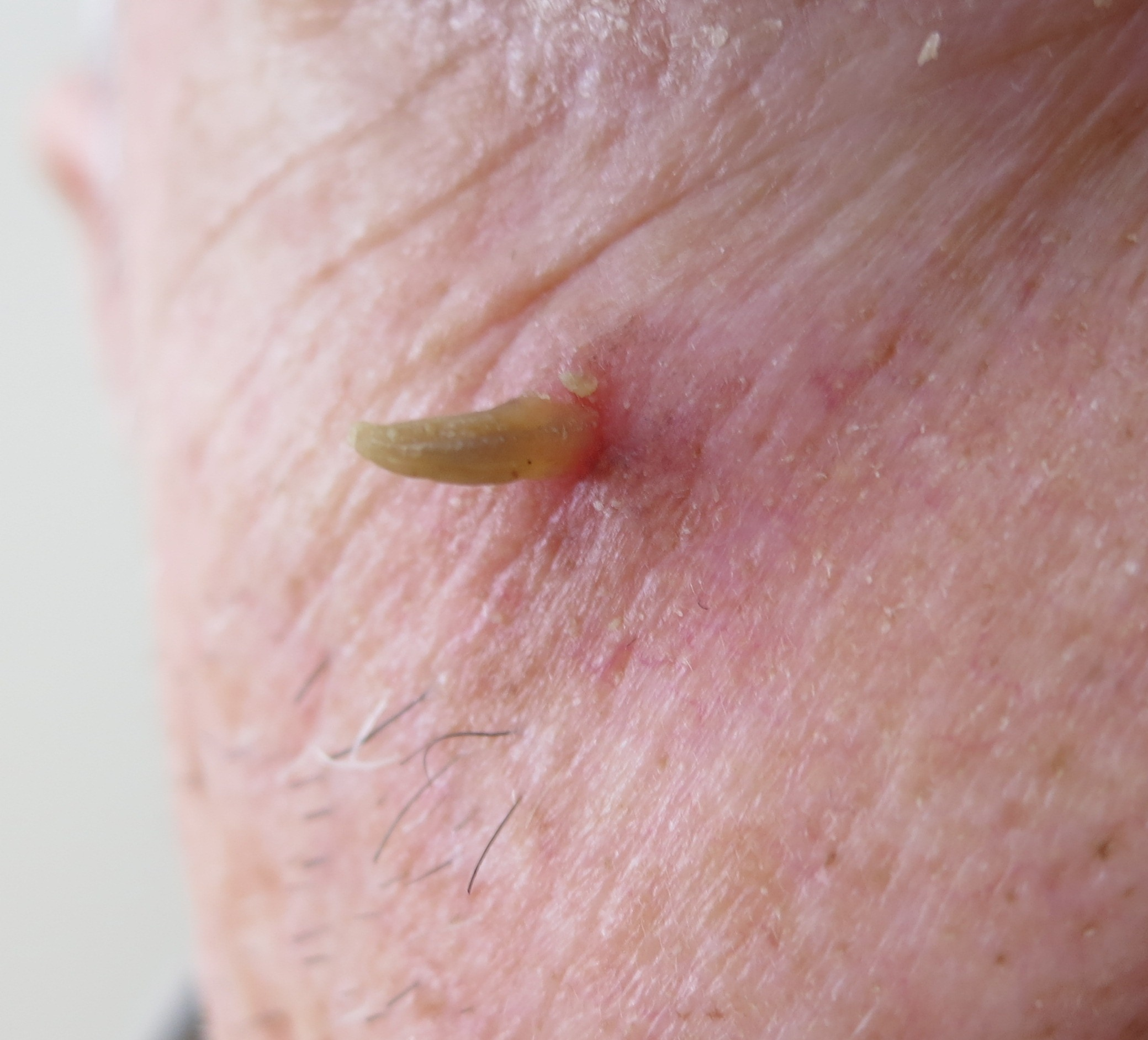 Actinic Keratosis Warning Signs and Images - SkinCancer.org