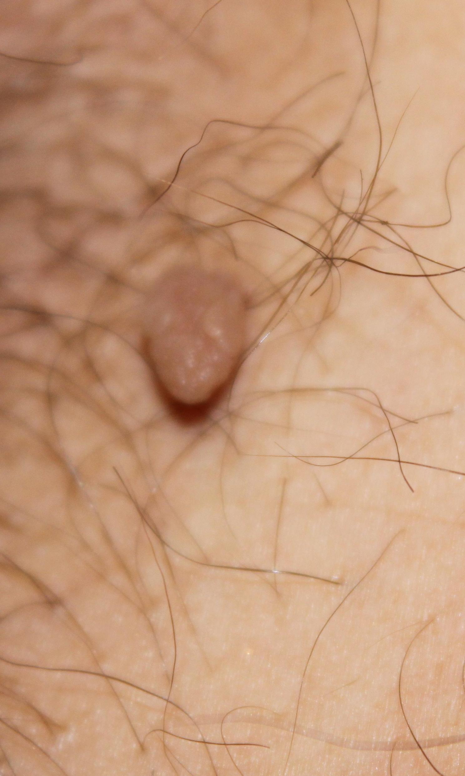 La mésothérapeutique de la personne les rappels à la pigmentation