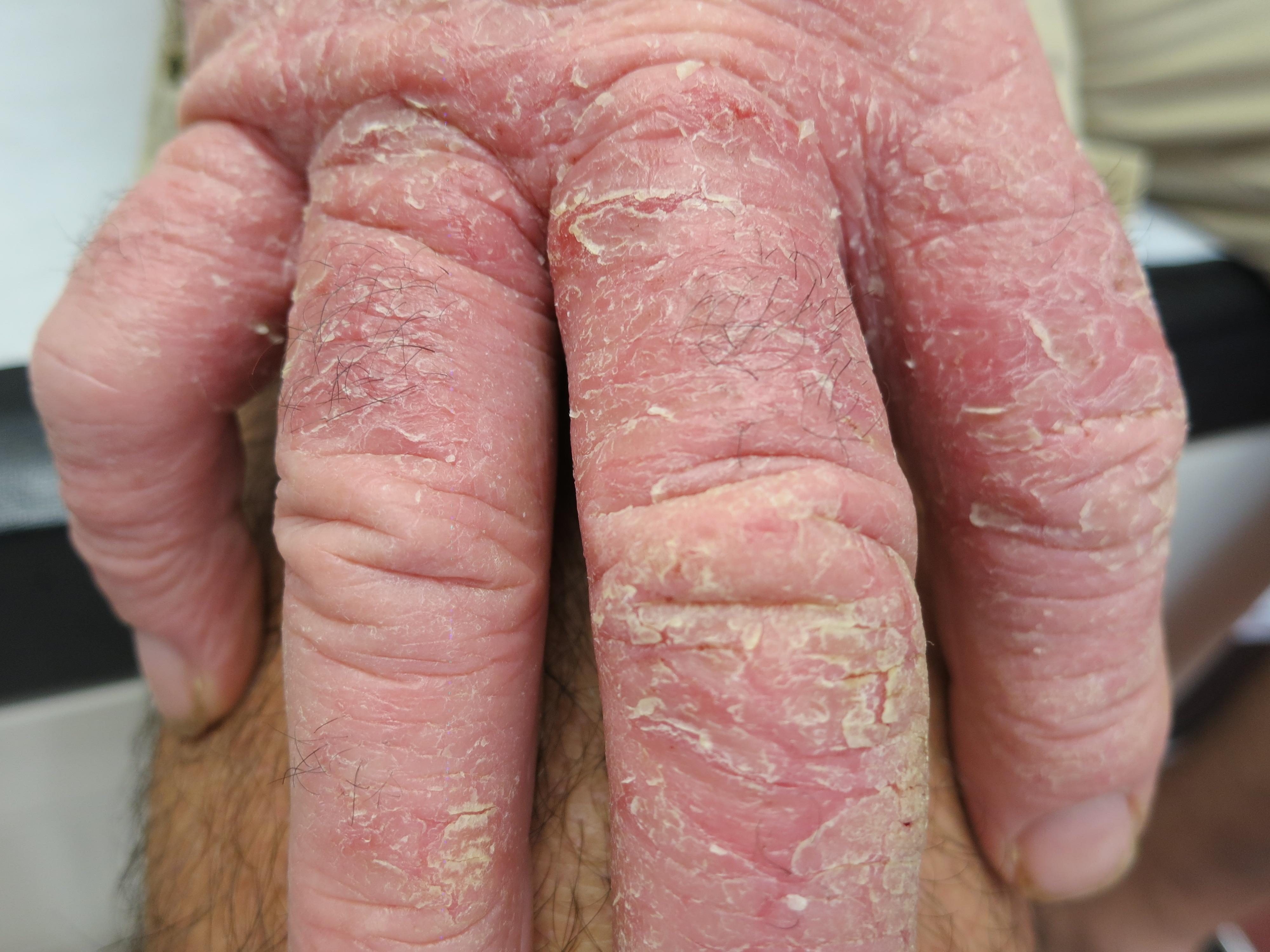 Comme les mamies traitent le psoriasis