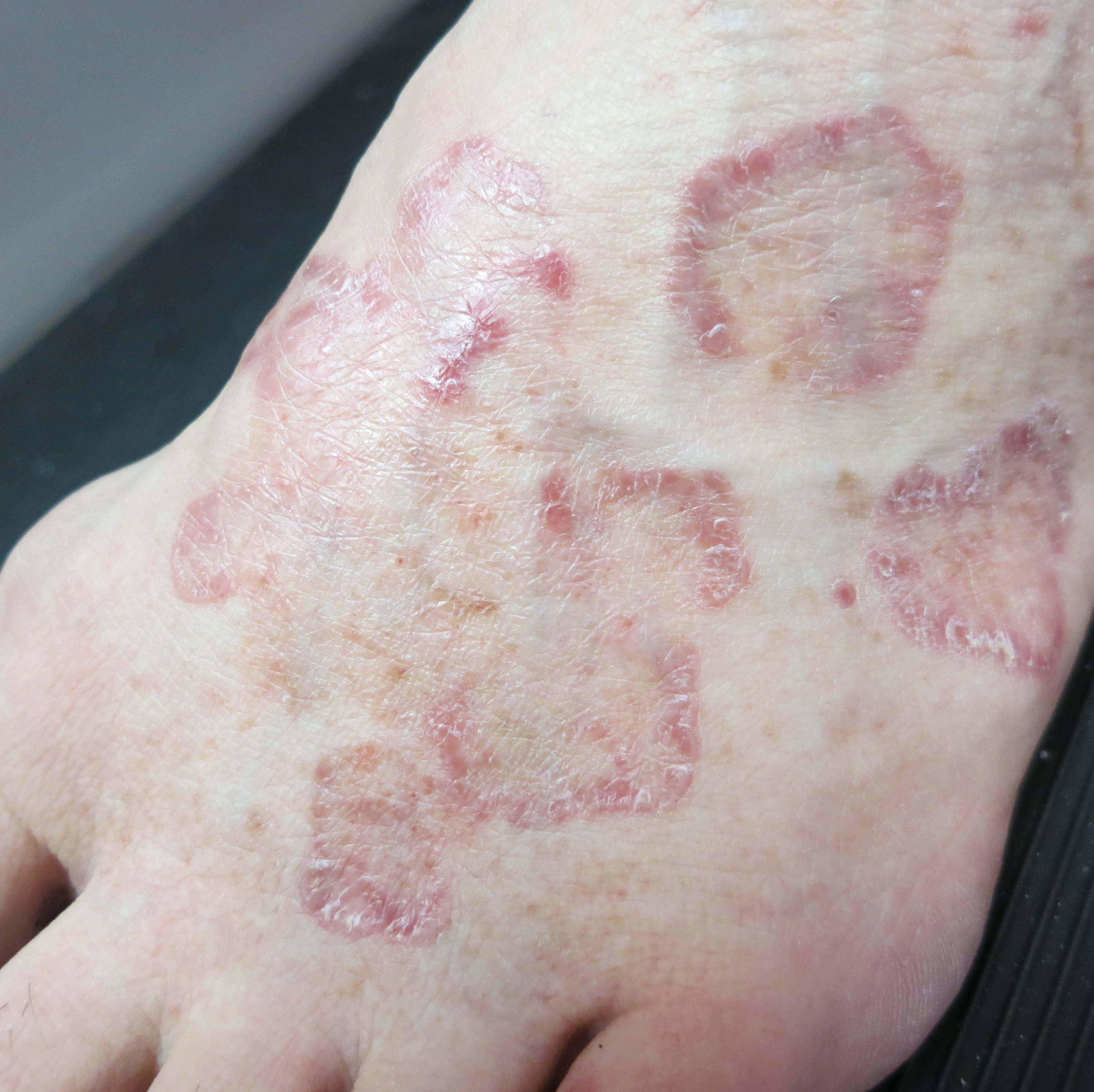 extract clear psoriasis