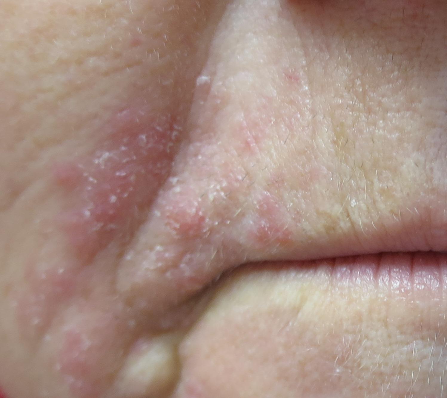 Les lésions cutanées le psoriasis le traitement de la photo